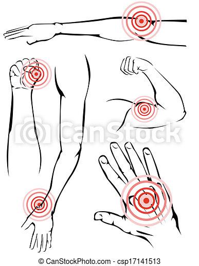 Arms pain - csp17141513